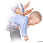 Choking and Strangling