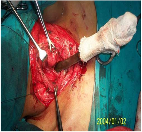 Pictures of Bad Wounds http://www.sodahead.com/living/cops-shoot-man-holding-a-knife-justifiable-or-unjustifiable/question-2465705/?page=2