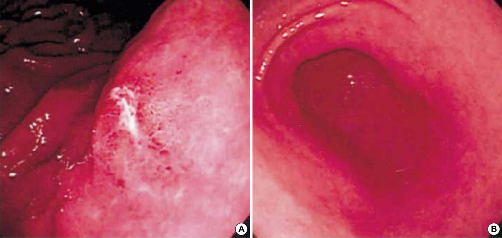 vitamin d deficiency after gallbladder removal