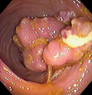 Polyps Colon Cancer