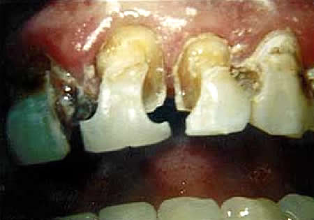 Tooth Decay, tooth disease ,tooth,