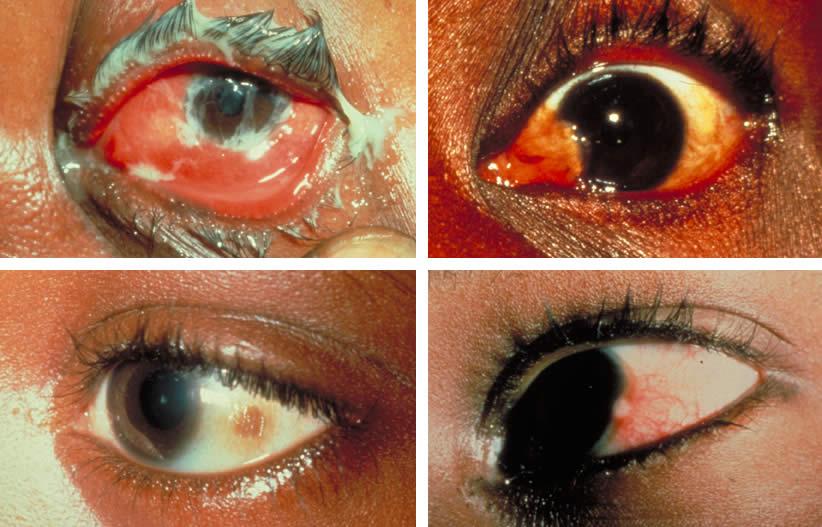 acute conjunctivitis, pinkeye