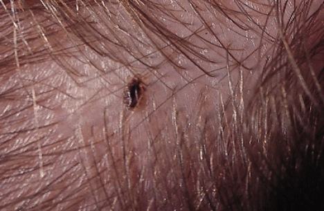 Head Lice, head lice eggs, Nits, Nymphs,
