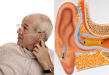 Nerve Deafness, hearing loss
