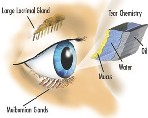 Eye Burn: First Aid Kit Recommendations Home Remedies & Treatments
