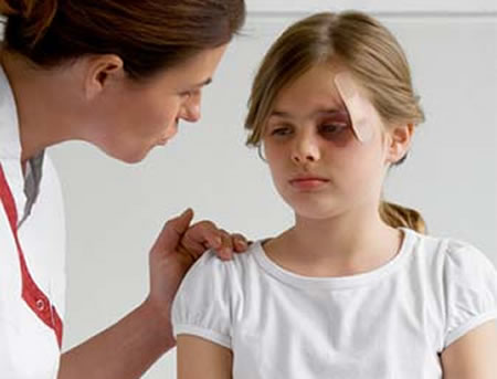 Injured Eye, eyelid , Injured Eye  Treatment, eye