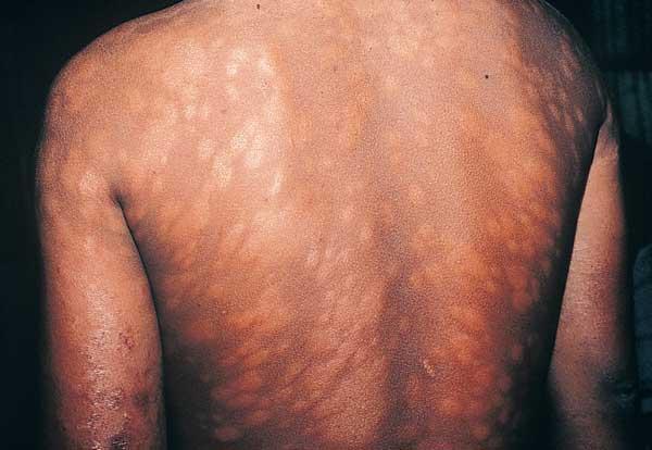 Leprosy, Leprosy Symptoms and Treatment, Leprosy Treatment, Leprosy Symptoms, Mycobacterium lepta, Mycobacterium lepta