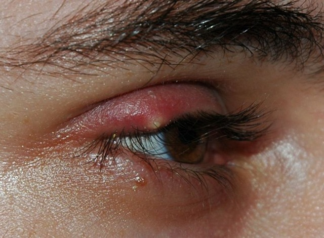 eyelid infection, styes, chalazion, chalazia