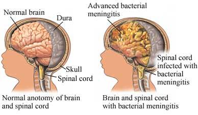 Meningitis, meninges, bacterial meningitis, Viral meningitis, aseptic meningitis