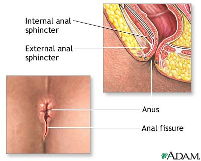 Anal Fissure Treatment, anal fissures, treatment, anus,
