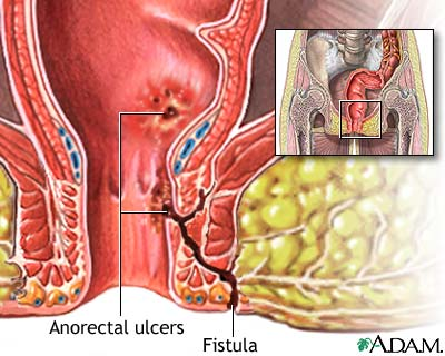 Anorectal Fistula Treatment, treatment, fistula, fistula's, anal, Anal fistula, Treatment of anal fistula