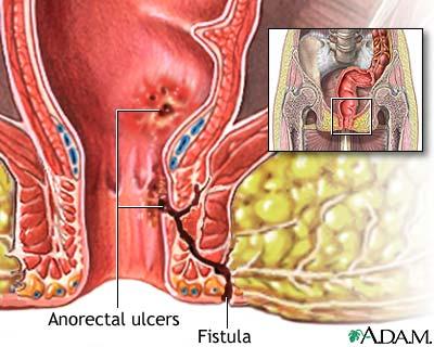 anorectal fistula treatment 1 Amateur lingerie models in pvc. Daniela kosan video porno
