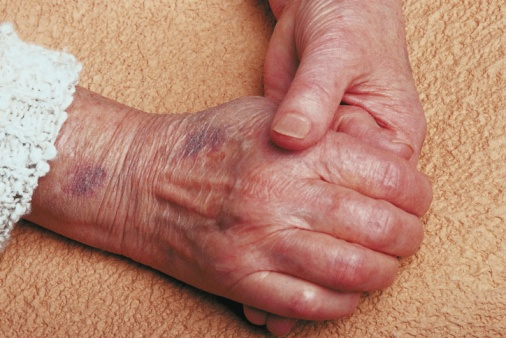 Bruise Treatment,bruise,bruises,Treatment ,