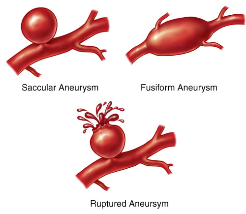 Aneurysms, symptoms, Treatment, Aneurysm Symptoms, Aneurysm Treatments