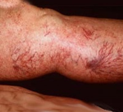 Thrombophlebitis, Causes, Symptoms, Diagnosis, Treatment, and Preventions