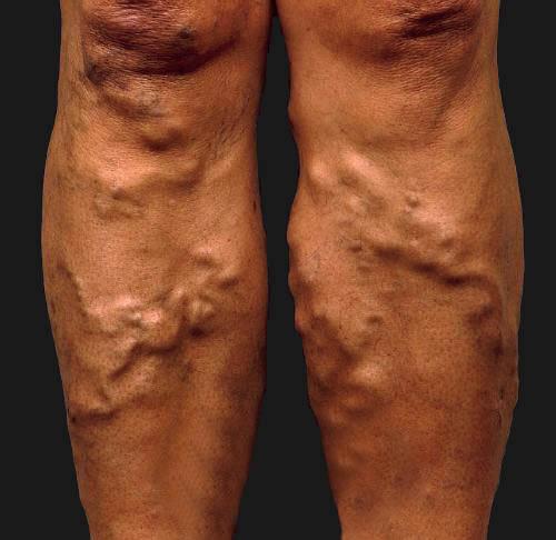 Varicose Vein, treatment, varicose vein treatment