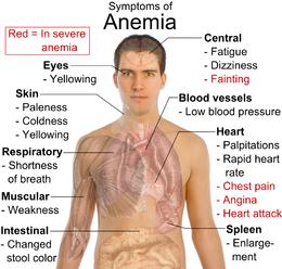 Anemia, causes, cause anemia, anaemia causes