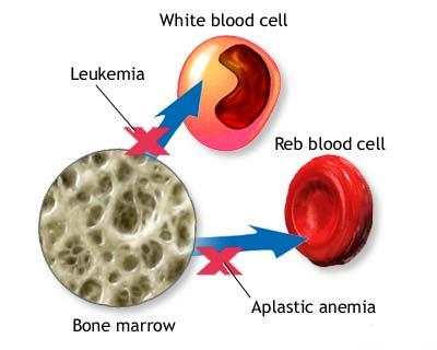 Anemia, bone marrow, Symptoms and Treatment, Bone Marrow Anemia Symptoms and Treatment