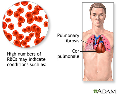 Polycythemia Symptoms and Treatment | Modern Guide to Health ...