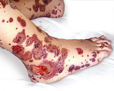 purpura,bleeding,Disease,Purpura: Bleeding Disease