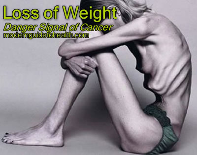 Loss of Weight: Danger Signal of Cancer