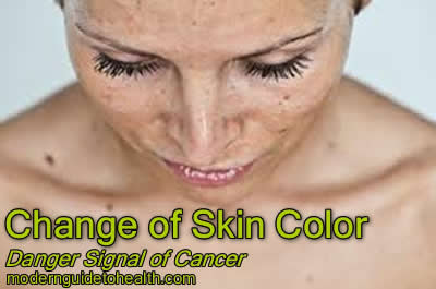 Change of Skin Color: Danger Signal of Cancer