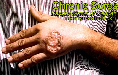 Chronic Sores: Danger Signal of Cancer