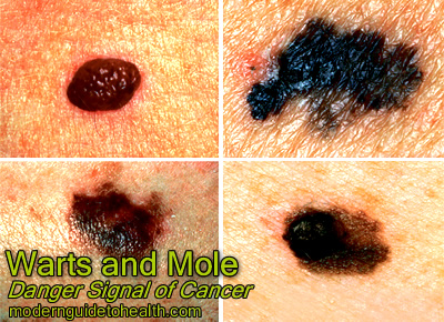 Warts and Mole: Danger Signal of Cancer
