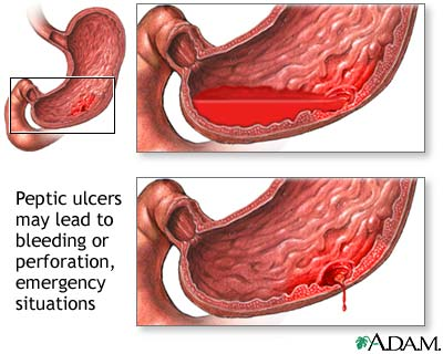 Peptic Ulcer: Diagnosis and Treatment