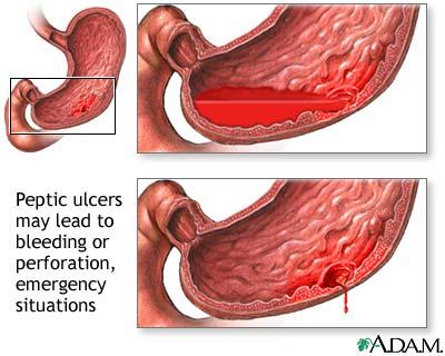 Nursing Articles Peptic Ulcer