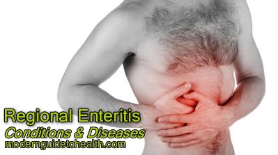 Regional Enteritis Symptoms and Treatment