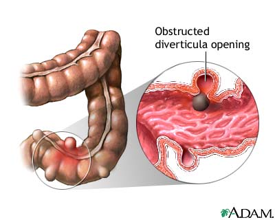 Diverticulitis Symptoms and Treatment