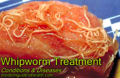 Whipworm Treatment