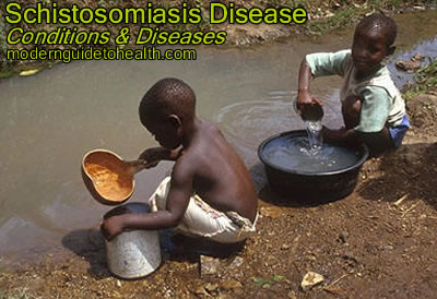 Schistosomiasis Symptoms, Treatment and Prevention