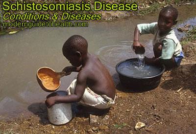 Schistosomiasis Symptoms, Treatment and Prevention