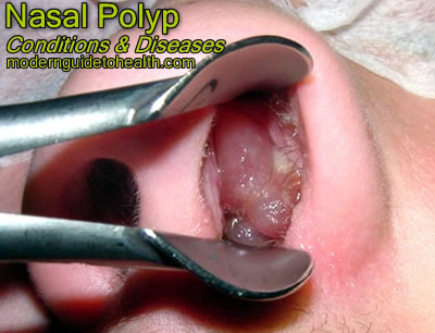 Nasal Polyp – Causes, Symptoms and Treatment