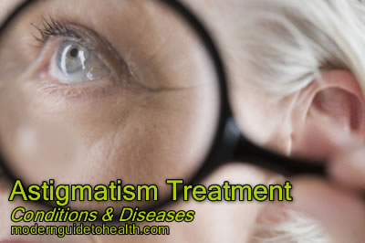 Astigmatism Treatment