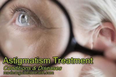 Astigmatism Treatment