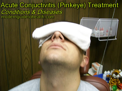 Acute Conjuctivitis (Pinkeye) Treatment
