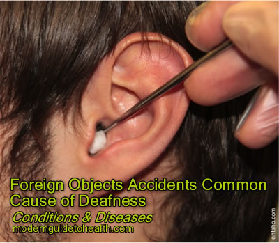 Foreign Objects Accidents Common Cause of Deafness